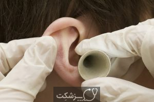 جرم گوش از علائم تا عوارض | پزشکت