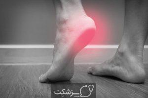 سوزش کف پا | پزشکت