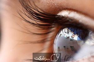 در شب یلدا، کشمش را فراموش نکنید. | پزشکت