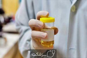 درمان های خانگی عفونت ادراری | پزشکت
