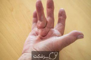 انقباض دوپویترن | پزشکت