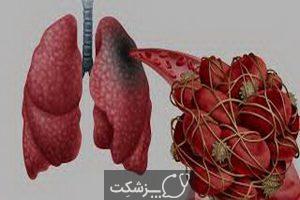 نتایج کالبد شکافی در بیماران COVID-19 | پزشکت