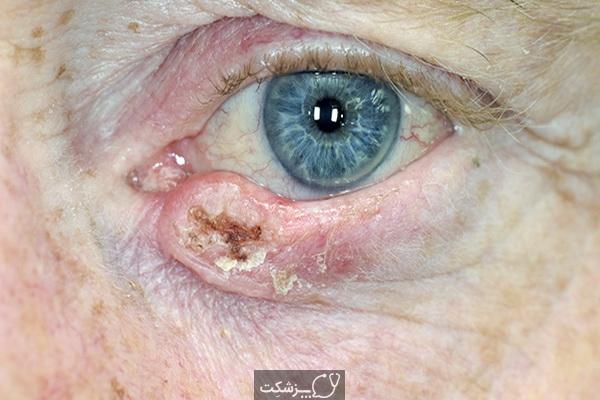 سرطان پلک | پزشکت