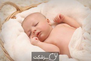 میوکلونوس خواب | پزشکت