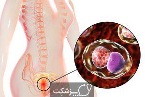 سوزش و خارش واژن | پزشکت