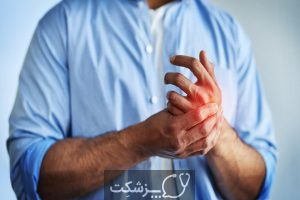 25 علت گزگز شدن دست و پا | پزشکت