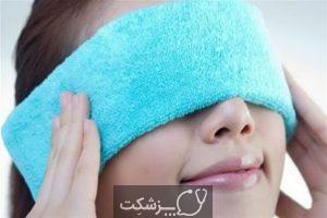 درمان های خانگی برای چشم درد | پزشکت