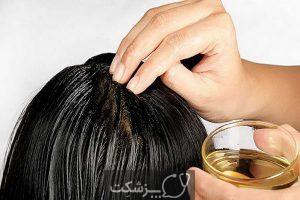 ایا استرس باعث ریزش مو می شود؟ | پزشکت