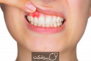 پالپکتومی دندان چیست؟   پزشکت