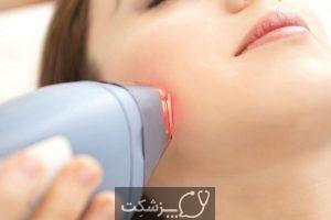 عوارض لیزر موهای زائد چیست؟ | پزشکت