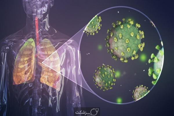 کرونا و نقص ایمنی بدن | پزشکت
