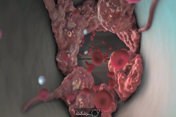 علت لخته شدن خون در قاعدگی | پزشکت