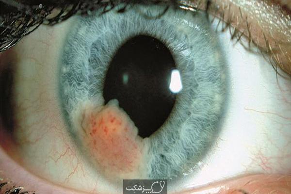 سرطان چشم | پزشکت
