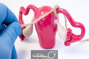 بستن لوله ها در زنان   پزشکت