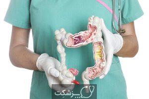 بیماری التهابی روده   پزشکت