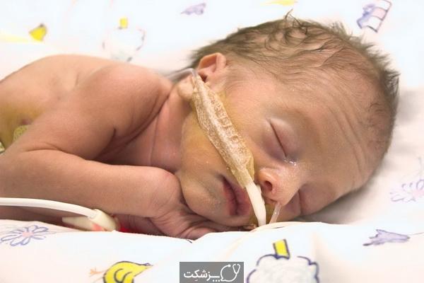نقایص مادرزادی دستگاه گوارش | پزشکت