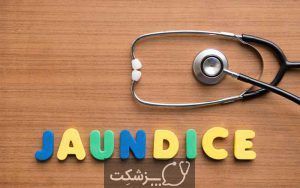 زردی بزرگسالان | پزشکت