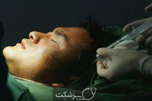 جراحی چال گونه | پزشکت