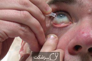 جراحی خشکی چشم | پزشکت