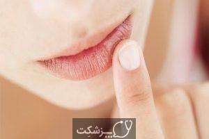 درمان خانگی خشکی پوست در زمستان | پزشکت