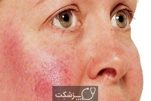 شایع ترین علت قرمز شدن پوست | پزشکت