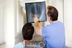 تومورهای ریوی غددی و عصبی چیستند؟ | پزشکت
