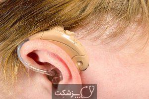 سندرم گوش موزیکال (MES) | پزشکت