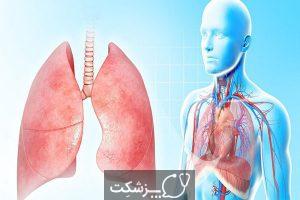 ریه | پزشکت