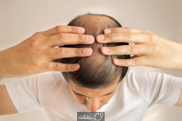 علل کم پشتی موی مردان و درمان آن | پزشکت