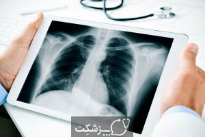 انواع سرطان ریه | پزشکت