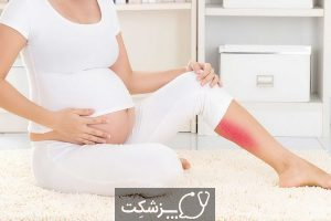 زانو درد در بارداری | پزشکت