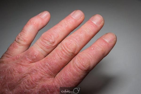 درمان خانگی آرتریت پسوریازیس   پزشکت