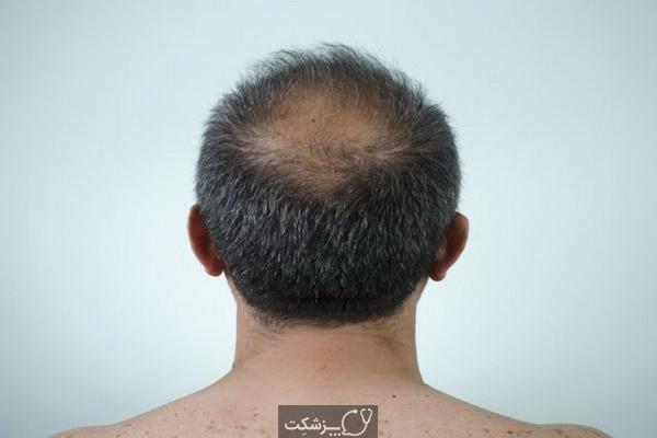 راهکارهای ضخیم سازی مو برای آقایان | پزشکت