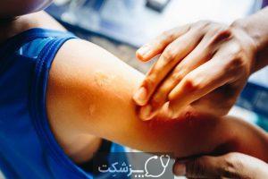بیماری های انگلی را بشناسید. | پزشکت
