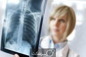 پنوموتوراکس | پزشکت