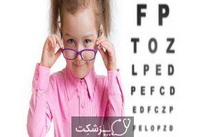 تست بینایی چیست؟ | پزشکت