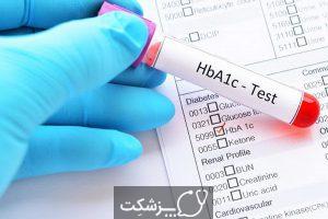 آزمایش قند خون چیست؟ | پزشکت