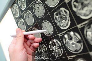تومورهای خوش خیم   پزشکت