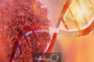 درد ناشی از سرطان چیست؟ | پزشکت