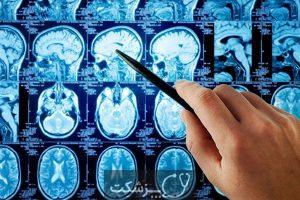 اپاندیوموما | پزشکت
