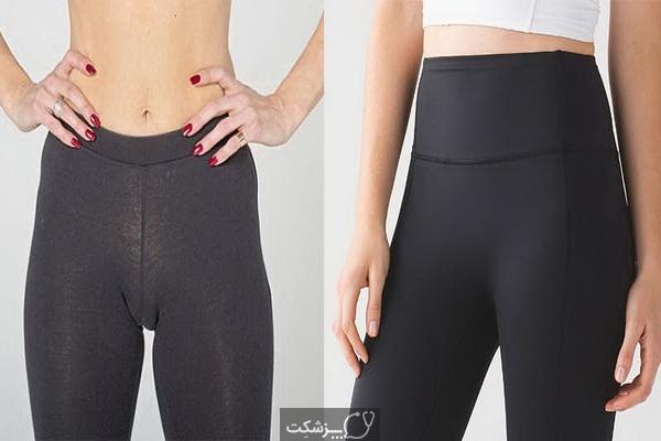 مخاطرات لباس زیر تنگ چیست؟ | پزشکت