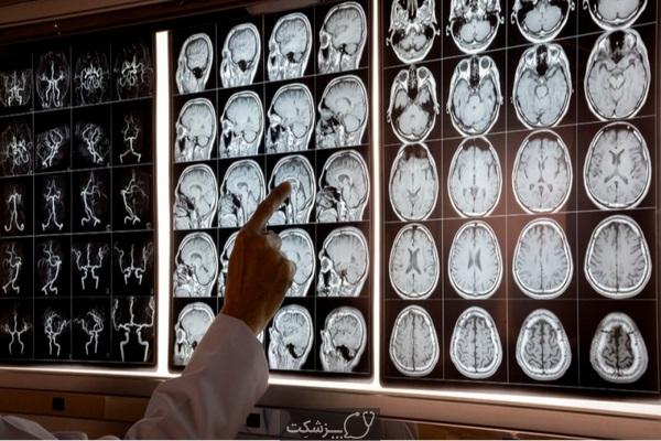چه زمانی به متخصص مغز و اعصاب مراجعه کنیم؟ | پزشکت