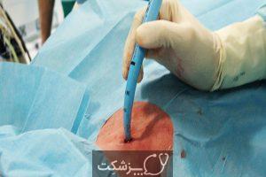 تراکئوستومی چیست؟ چه زمانی انجام می شود؟ | پزشکت