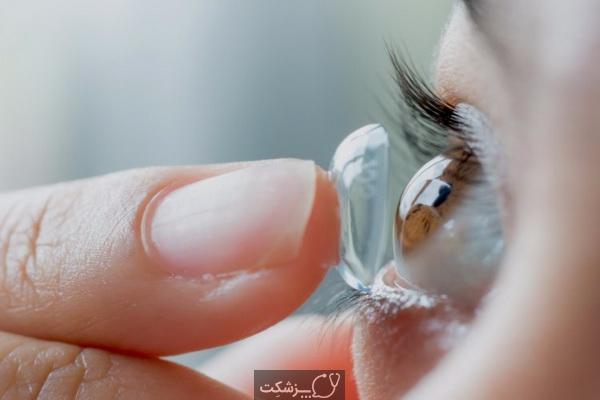 آیا لنزهای تماسی خطر شیوع کرونا را افزایش می دهند؟ | پزشکت