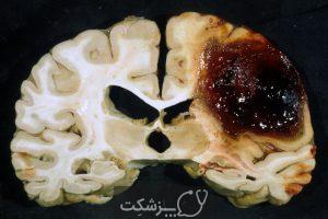 خونریزی مغزی چیست؟ | پزشکت
