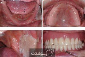 مراقبت از دهان و دندان در بیماران سرطانی | پزشکت