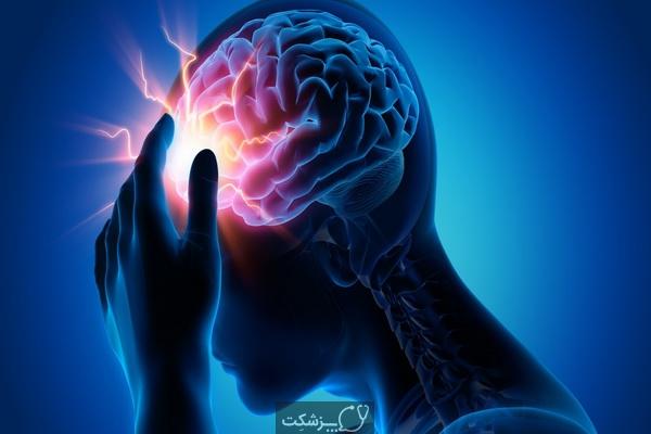 حمله مغزی ایسکمیک چیست؟ | پزشکت