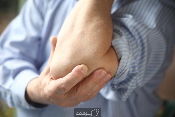 شایع ترین علت بدن درد چیست؟ | پزشکت
