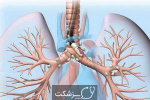 سونوگرافی درون برونشیال چه کاربردی دارد؟ | پزشکت