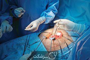 انواع فتق | پزشکت
